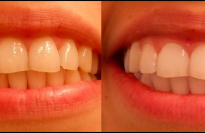 Zubi poznatih pre i posle